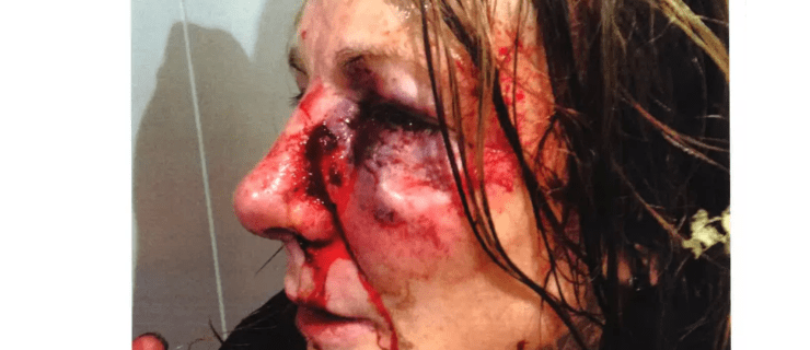 """Brave Uxbridge woman releases image of injury after """"traumatic"""" street robbery"""